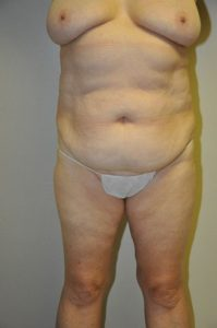 Patient 2 - Tummy Tuck Before