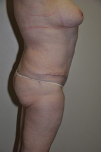 Patient 2 - Tummy Tuck After