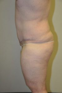 Patient 2 - Tummy Tuck Following Large Weight Loss After
