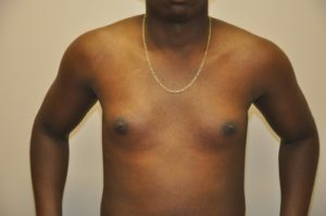Patient 2 - Mastectomy and Liposuction Before Front