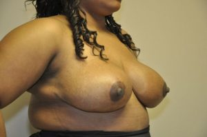Patient 3 - Breast Reduction After