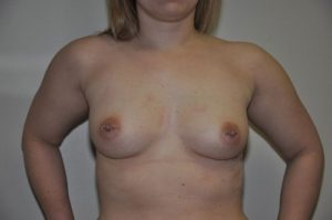 Patient 3 - Breast Augmentation with Implants Before