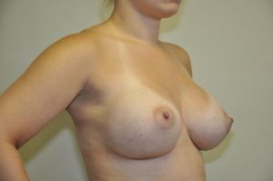 Patient 3 - Breast Augmentation with Implants After