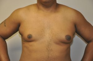 Patient 3 - Mastectomy and Liposuction Before Front