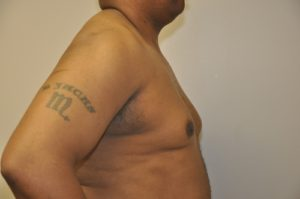 Patient 3 - Mastectomy and Liposuction Before Side