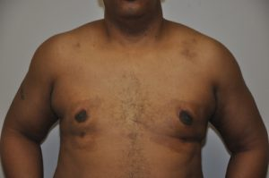 Patient 3 - Mastectomy and Liposuction After Front