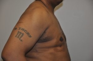 Patient 3 - Mastectomy and Liposuction After Side