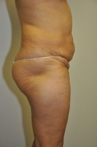 Patient 3 - Tummy Tuck Before