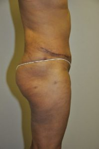 Patient 3 - Tummy Tuck After
