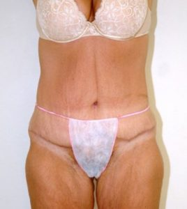 Patient 3 - Tummy Tuck Following Large Weight Loss After