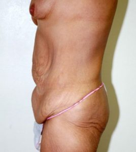 Patient 3 - Tummy Tuck Following Large Weight Loss Before