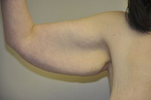 Patient 4 - Arm Reduction/Lift Before