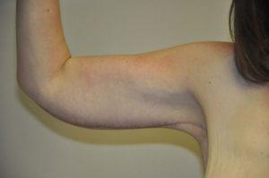 Patient 4 - Arm Reduction/Lift After