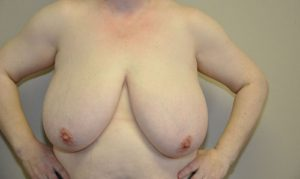 Patient 4 - Breast Reduction Before