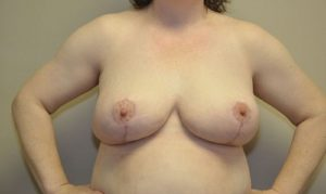 Patient 4 - Breast Reduction After