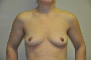 Patient 4 - Breast Augmentation with Implants Before