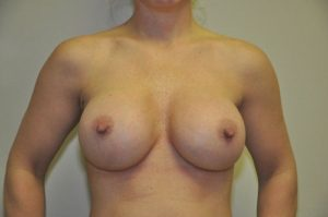 Patient 4 - Breast Augmentation with Implants After