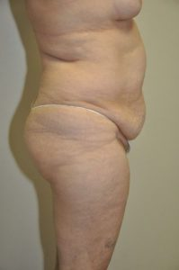 Patient 4 - Tummy Tuck Before