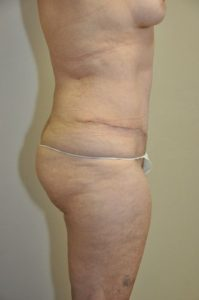 Patient 4 - Tummy Tuck After