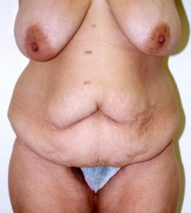 Patient 4 - Tummy Tuck Following Large Weight Loss Before