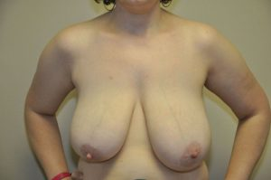 Patient 5 - Breast Reduction Before