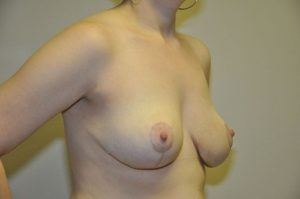 Patient 5 - Breast Reduction After