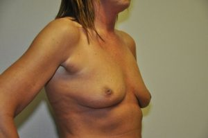 Patient 5 - Breast Augmentation with Implants Before