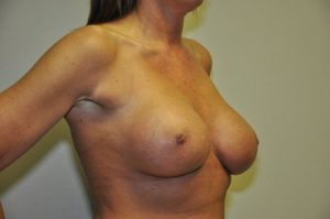 Patient 5 - Breast Augmentation with Implants After