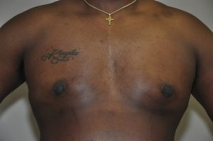 Patient 5 - Mastectomy and Liposuction After Front