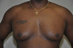 Patient 5 - Mastectomy and Liposuction Before Front