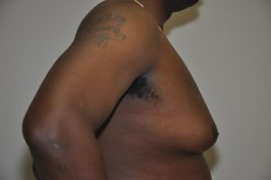 Patient 5 - Mastectomy and Liposuction Before Side