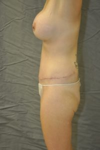 Patient 5 - Tummy Tuck After