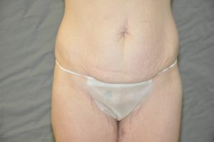 Patient 5 - Tummy Tuck Before