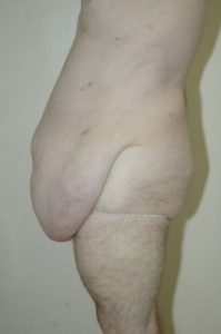 Patient 5 - Tummy Tuck Following Large Weight Loss Before