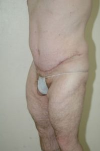 Patient 5 - Tummy Tuck Following Large Weight Loss After