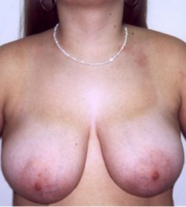 Patient 6 - Breast Reduction Before