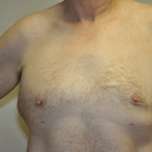 Patient 6 - Breast Reduction After
