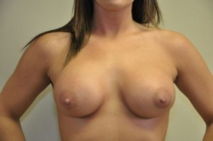 Patient 6 - Breast Augmentation with Implants After