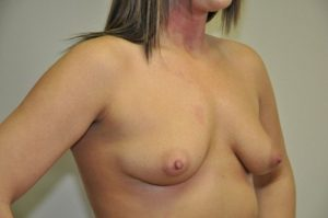 Patient 6 - Breast Augmentation with Implants Before