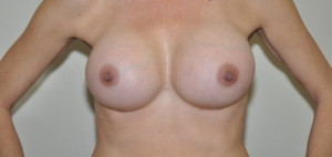 Patient 7 - Breast Augmentation with Implants After_1