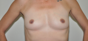 Patient 7 - Breast Augmentation with Implants Before_1