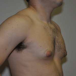 Patient 7 - Breast Reduction Before