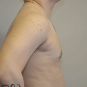 Patient 7 - Breast Reduction After
