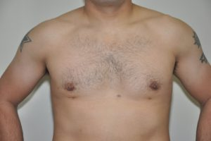 Patient 8 - Breast Reduction After