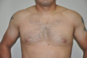 Patient 8 - Breast Reduction Before