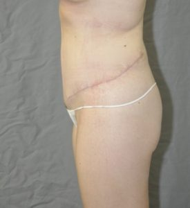 Patient 8 - Tummy Tuck After