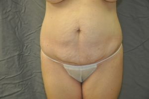 Patient 8 - Tummy Tuck Before