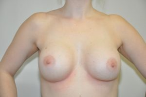 Patient 9 - Breast Augmentation with Implants After_1