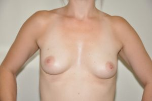 Patient 9 - Breast Augmentation with Implants Before_1