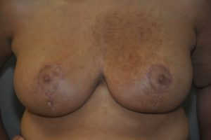 Patient 9 - Breast Reduction After